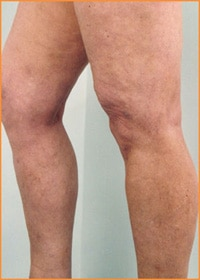 Varicose Vein Removal Suffolk County