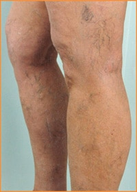 Suffolk County Varicose Vein Removal
